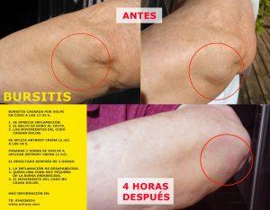 estudio-empirico-de-la-eficacia-antiinflamatoria-y-calmante-del-producto-artrosy-en-una-bursitis-por-accidente
